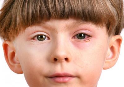 Красный глаз у ребенка: симптомы и причины