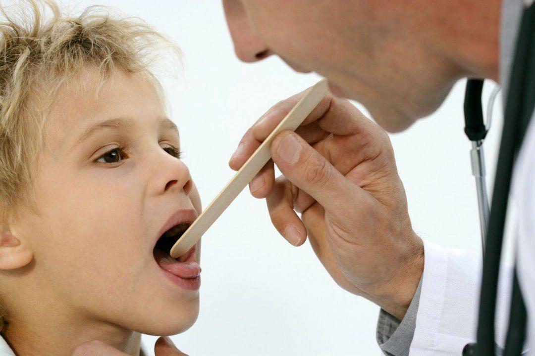 Красное горло у ребенка к комуобращаться?